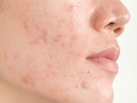 Controlling acne, the natural way