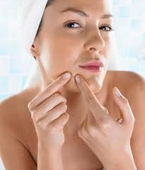 Obsessive Pimple Popping Can Be Controlled!