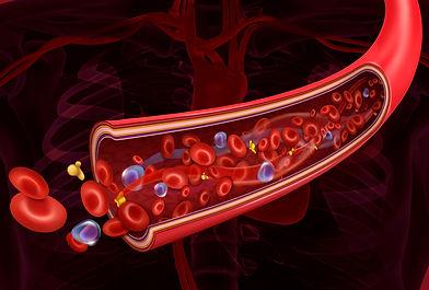 Arteria-fundo-vermelho.jpg