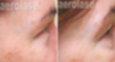 Skin Rejuvenation4 - Pair.png