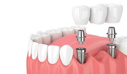 implantes-dentales-Palencia-Morales-Cerv