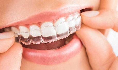 ventajas-ortodoncia-insivible-invisalign