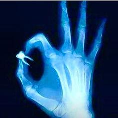 röntgen el