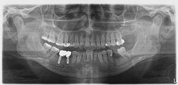 panoramik röntgen