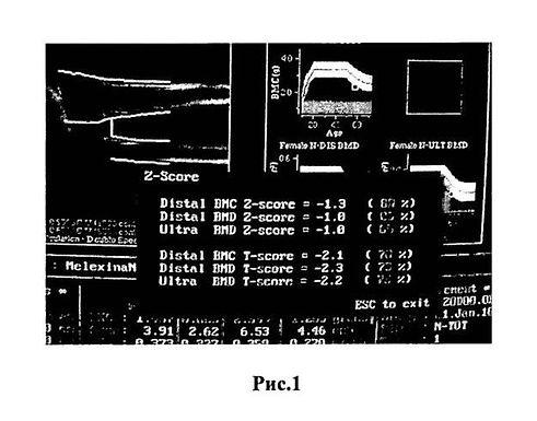 X線吸収測定法による骨密度の測定による骨保護剤の客観的効率性評価装置