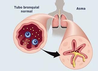 asma2_neumologointervencionista