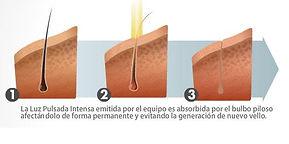 depilacion definitiva barcelona