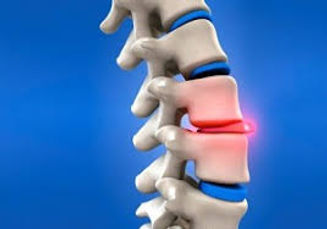 spinal disc issue.jpg