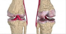 artrite_-_cartilagem_-_osteoartrite_-_ar