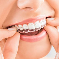 what-is-invisalign.jpg