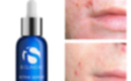 BeforeAfter-ActiveSerum-2 - nach 3 Monat