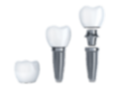 Im Implantatzentrum Osnabrück werden nur die hochwertgsten Materialien und Implantate verwendet und eingesetzt!
