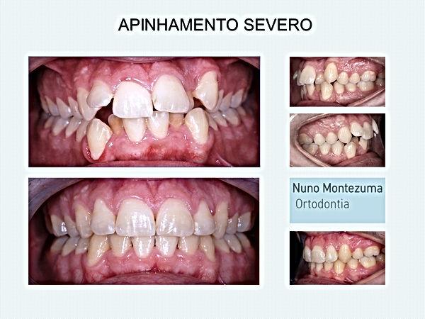 corregir dentes tortos