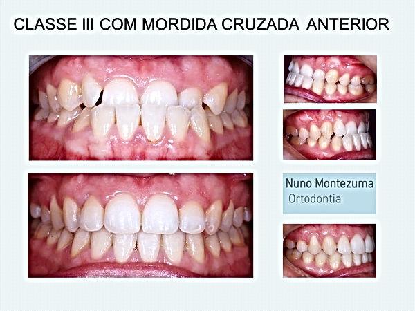 tratamento dentes tortos