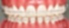 Ortodontia em lisboa Dr Nuno Montezuma