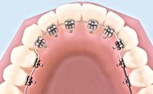 Dr Nuno Montezuma Ortodontia lingual em lisboa