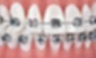 Nuno Montezuma ortodontia em lisboa