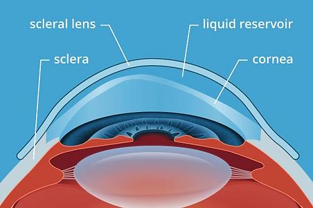 Scleral lens.png