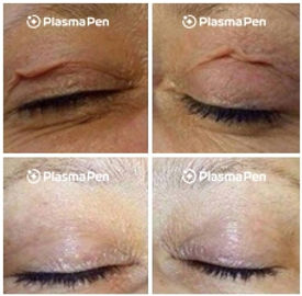 Plasma-Pen-Treatment-Before-And-After-Up