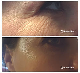 Plasma-Pen-Treatment-Before-And-After-Cr
