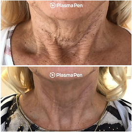 Plasma-Pen-Treatment-Before-and-After-Ne