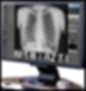 Chiropractor Midlothian X-Rays