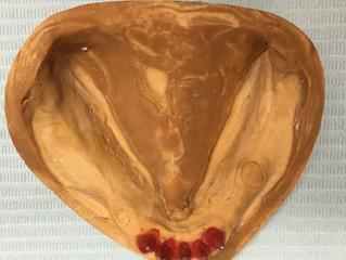 部分床義歯と顎位の決定 米国補綴専門医が語る一般歯科医の知らない世界
