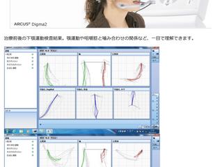 デジタル顎運動計測器:アルクスディグマ2