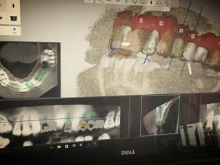 インプラントの治療計画、分析ソフトとガイドを使うクリニックを選びましょう米国補綴専門医が語る一般歯科医の知らない世界