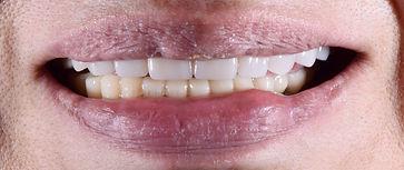 恵比寿西シード歯科