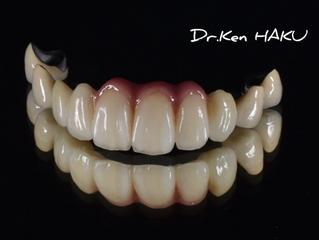 オールセラミックスか、メタルか?被せ物は何を選ぶ?〜ブログ 補綴専門医が語る一般歯科医の知らない世界〜