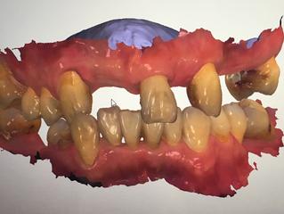 連休明けは、連続オペです 米国補綴専門医が語る一般歯科医の知らない世界