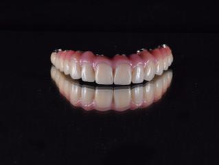 シード歯科・矯正歯科のオールセラミック治療