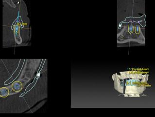 オールオン4:下顎に4本インプラントを埋入しました。