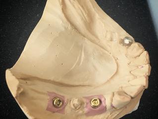 インプラントの脱離 米国補綴専門医が語る一般歯科の知らない世界
