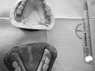 実はインプラントより複雑で難しい入れ歯作り〜ブログ 補綴専門医が教える、一般歯科医の知らない世界〜