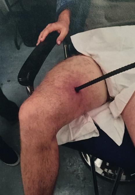 LEG PROSTHETIC