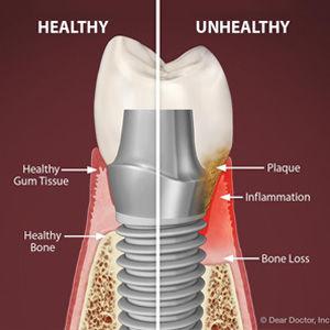 implant debrie.jpg