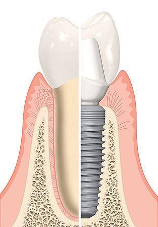 Nobel Natural vs Implant Tooth.jpg