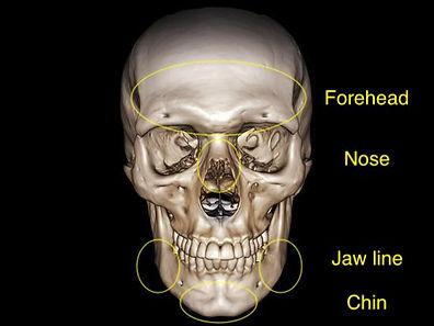 facial feminisation surgery 1