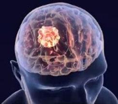 brain_tumor_image_edited_edited.jpg