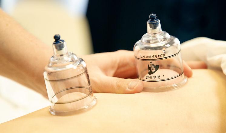 Myofascial Cupping.jpg