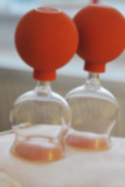 cupping-glasses-1586427_1920.jpg