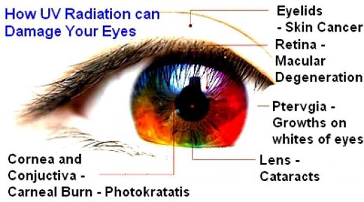 UV radiation damage