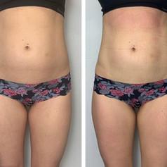 Body Contour Stomach