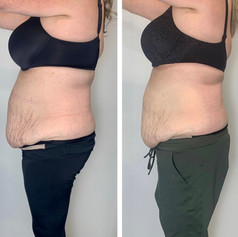 Combo Laser Lipo and Body Contour 4 Sesssions