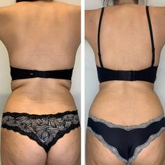 Laser Lipo for bra fat 3 Sessions