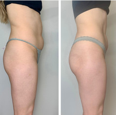 1Session Body Contour Booty Plump