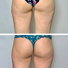 Lower Body Makeover 3 Sessions