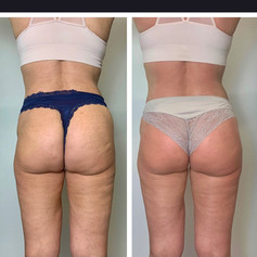 2 Sessions Lower Body Makeover